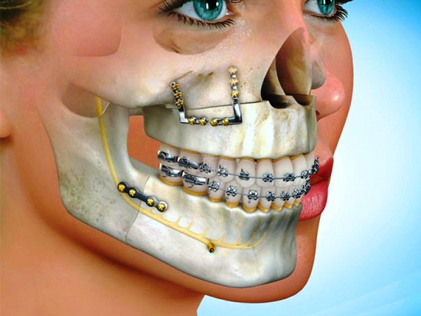 Cranio-Maxillofacial-Fixation-Devices-Market